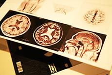 脳MRI検査