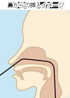 鼻からの挿入イメージ